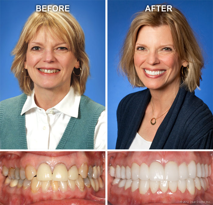 Cosmetic dentistry before/after